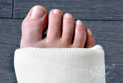 Mal de pied