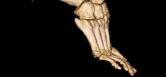 Prendre le temps - scanner de pied